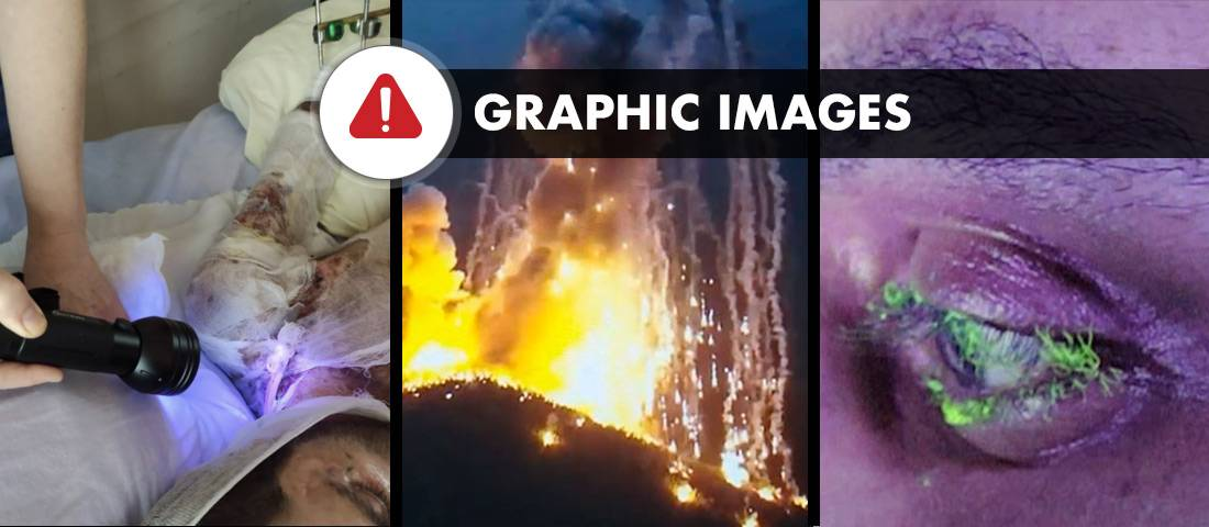 The humanitarian toll of Azerbaijani scorched-earth strategy in Artsakh/ Nagorno-Karabakh: White Phosphorus, devastated nature and non-healing  wounds - AzeriWarCrimes.ORG