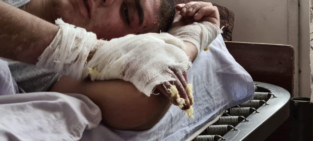 Burn victims of white phosphorus incendiary attacks by Azerbaijan on the Armenian-controlled Nagorno-Karabakh